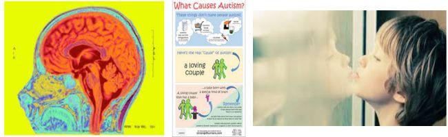 مدلهای سبب شناسی و درمان اتیسم