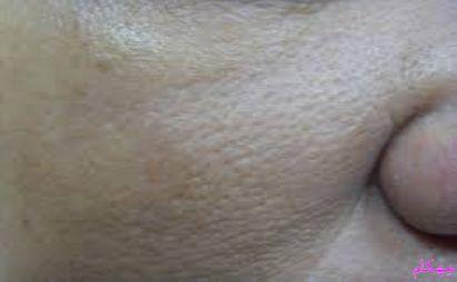 مهکام-با این ماسک منافذ و سوراخ های روی پوست صورتتان را بپوشانید