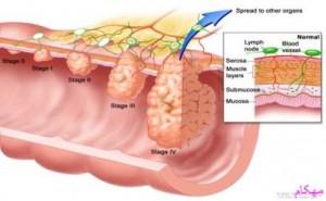 مهکام-روشهای درمان بیماری سرطان کلون و رکتوم عبارتند از جراحی، شیمیدرمانی، درمان بیولوژیک، یا پرتودرمانی