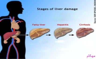 مهکام-hepititas-هپاتيت چيست ؟ انواع هپاتيت a-b-c-d-e-f