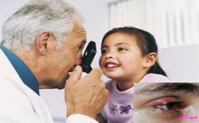 مهکام مجله اینترنتی خانواده گل مژه اطفال و کودکان چیست ؟