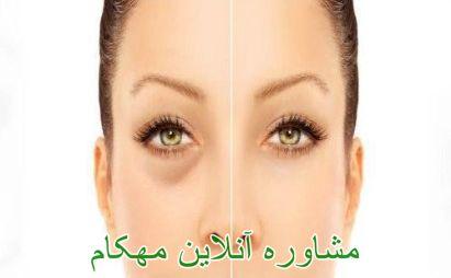گودی چشم و درمان آن