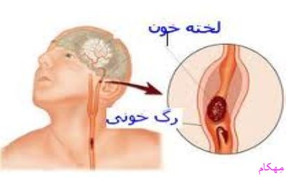 مهکام علایم هشدار دهنده سکته مغزی را بشناسیم