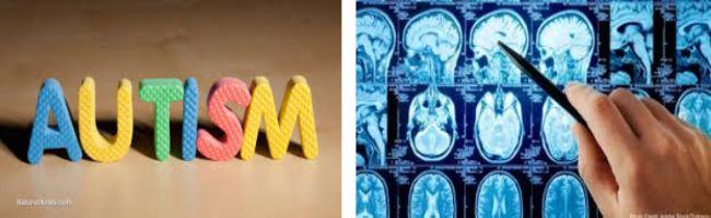 عوامل زیستی شیمیایی در بیماری اتیسم