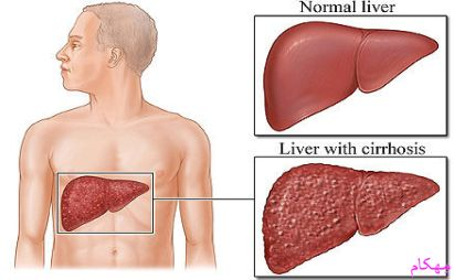 هپاتیت چیست ؟انواع بیماری هپاتیت a-b-c-e